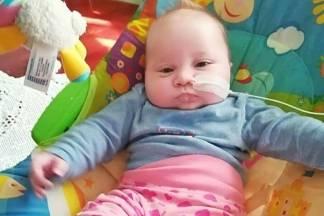 Djevojčici rođenoj sa sraslom čeljusti potrebna je skupa operacija u Austriji- pomozimo joj!