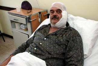 Napadač na Brkana dobio 3 godine zatvora