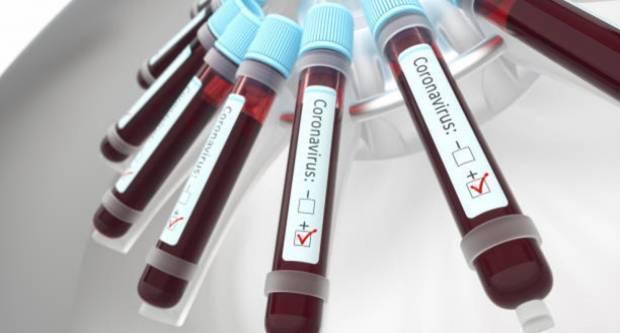 U protekla 24 sata zabilježena su 24 nova slučaja zaraze