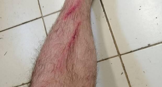 Kako izgleda Sivrićeva noga poslije prijateljske utakmice... Čuli smo se s njime, dobro je..