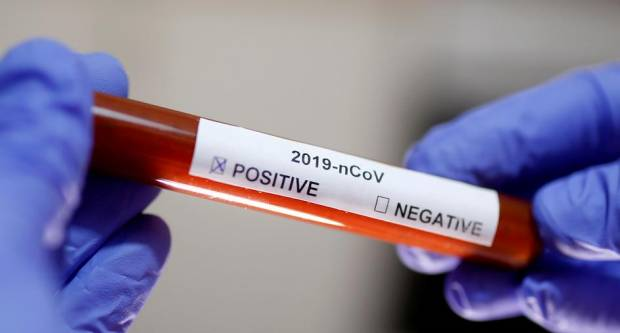Korona virus najviše pogađa starije ljude, ali moraju paziti i mlađi