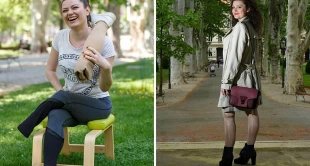 Požežanka Anja nije odustala: ʺIako su mi amputirali nogu, nosim štikleʺ